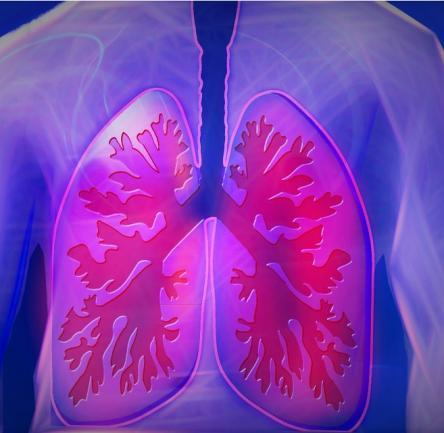 Lungenembolie-