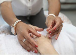 Welche Nebenwirkungen bei Akupunktur?
