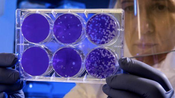 Zika-Virus, Hirnfehlbildungen und Mikrozephalie