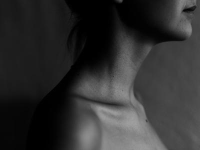Dunkle Hautflecken - Acanthosis nigricans – Ursachen und Behandlung