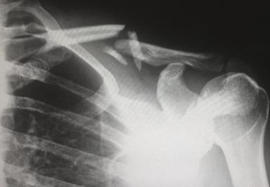 Universität Oxford :Vegetarier und Pescetarier mit höheren Risiko für Knochenbrüche