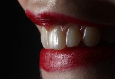 Zahnabszesse