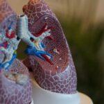 Asbestose: Symptome, Ursachen, Diagnose und Behandlung